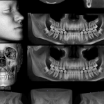 06 radiografias